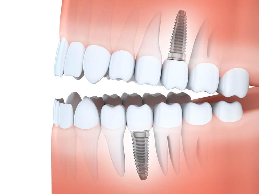 Das Zahnimplantat ist eine moderne Art des Zahnersatzes